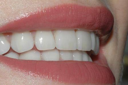 toronto dental lab patient showing beautiful teeth - second nature dental innovations case